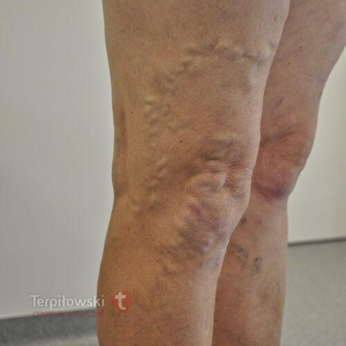 11 sklroterapia nawrotowych zylakow