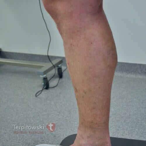 2ELVeS i sklero efekt koncowy