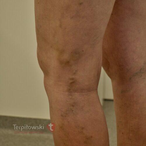 8 sclero po dwoch miesiacach