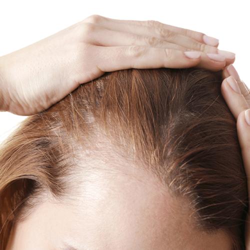 O włosach kobiety (Hirsutyzm)