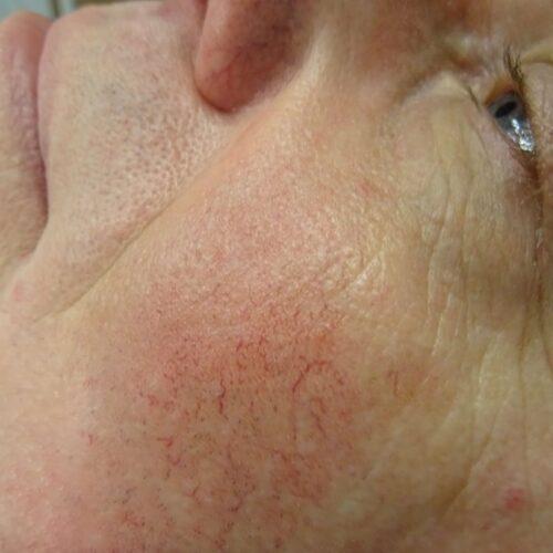 naczynka na twarzy d6bc636 e1600962083108