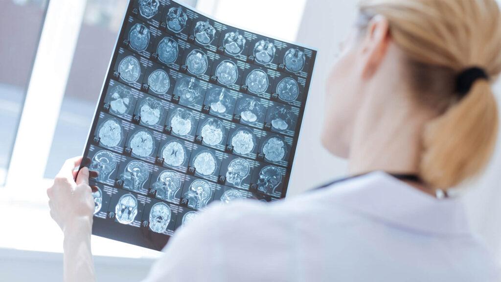 neurologia b1f3aa2