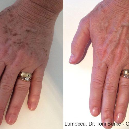 TB Lumecca 1a Hands