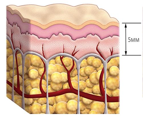skora przekroj cellulite